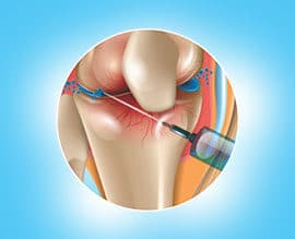 autologous grafting treatment in indore