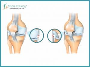 Pain causes due to ligament injury