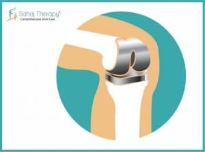 Knee Pain Treatment- Surgical