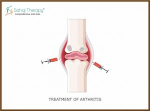 Treatment of arthritis by SVF Therapy